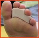 Podotherapeutische siliconen ortheses1